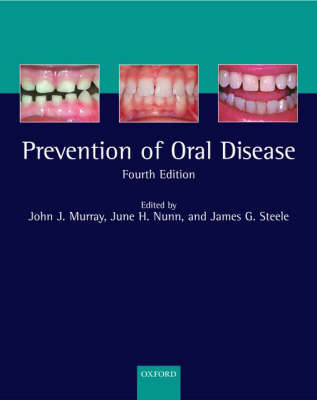 The Prevention of Oral Disease