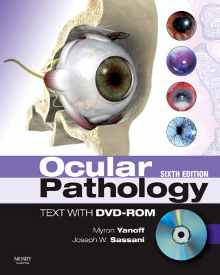 Ocular Pathology: Expert Consult: Online and Print