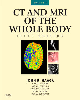 CT and MRI of the Whole Body