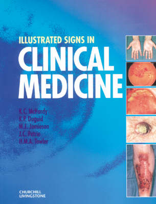 Illustrated Signs In Clinical Medicine