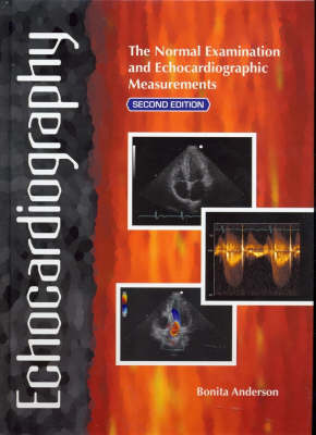 Echocardiography: The Normal Examination of Echocardiographic Measurements