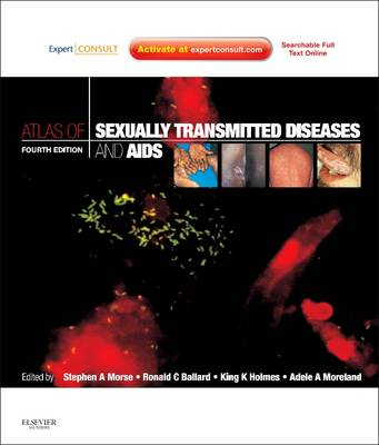 Atlas of Sexually Transmitted Diseases and AIDS: Expert Consult