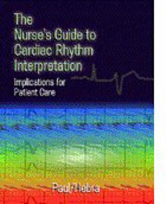 Nurses Guide To Cardiac Rhythym Interpretation