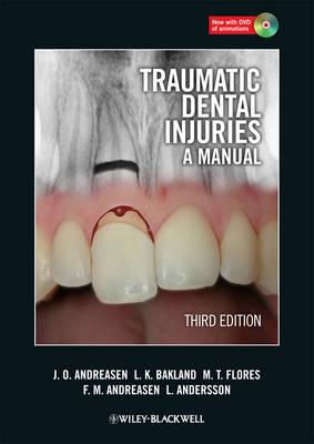 Traumatic Dental Injuries: A Manual
