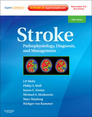 Stroke: Pathophysiology, Diagnosis, and Management