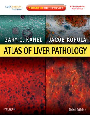 Atlas of Liver Pathology