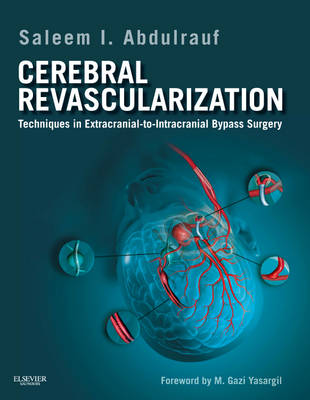 Cerebral Revascularization: Techniques in Extracranial-to-Intracranial Bypass Surgery