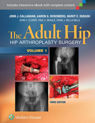 The Adult Hip, In Two Volumes