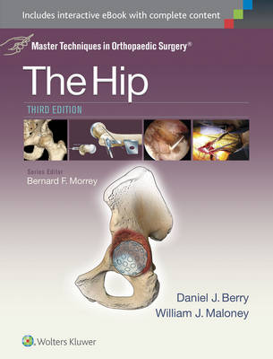 Master Techniques in Orthopaedic Surgery: The Hip (Master Techniques in Orthopaedic Surgery)