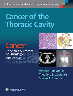 Cancer of the Thoracic Cavity