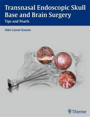 Transnasal Endoscopic Skull Base and Brain Surgery: Tips and Pearls