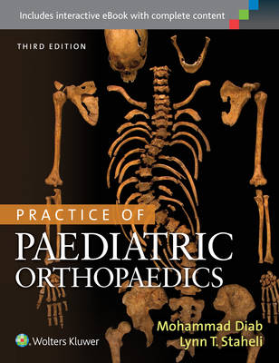 Practice of Paediatric Orthopaedics