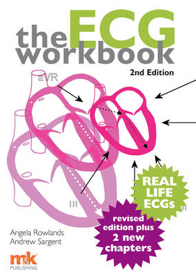 The ECG Workbook